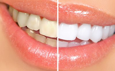 The Top 3 DIY Teeth Whitening Methods (That Are Ruining Your Teeth)