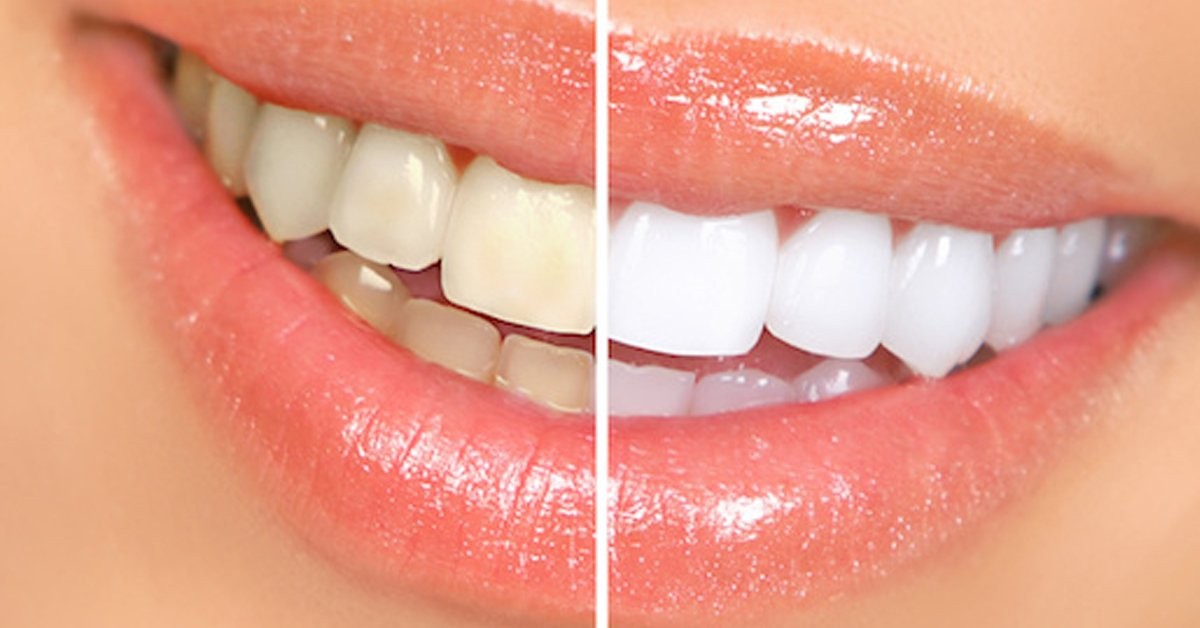 The Top 3 Diy Teeth Whitening Methods That Are Ruining Your Teeth